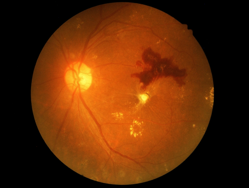 diabetic retinopathy article